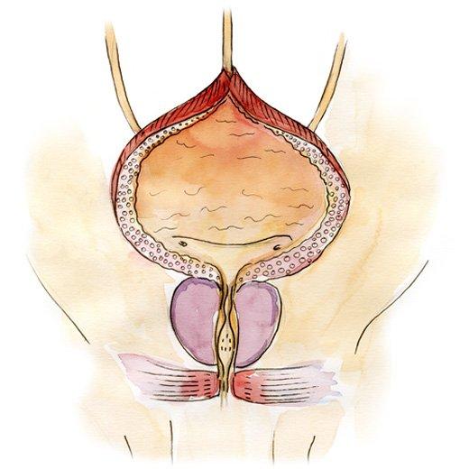 Prostatın adenoması, prostat müalicə, uroloq, androloq Ziyad Əliyev Bakıda