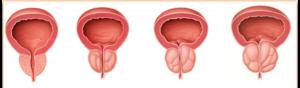 prostat adenoması, uroloq Ziyad Aliyev