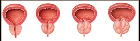 Prostat vəzi, prostatit müalicəsi, prostat adenoması, uroloq, androloq Dr Ziyad Aliyev Bakıda