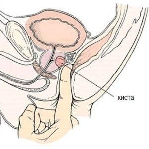 prostat vəzin kistası