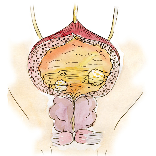 Prostat adenoması, prostat müalicə, uroloq, androloq Ziyad Əliyev Bakıda