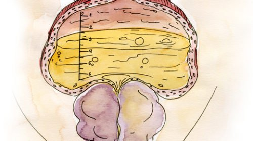 prostat adenomasi, prostat emeliyyati